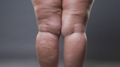 Everything You Need To Know About And Treating Cellulite