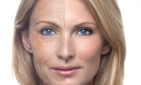 Natural Habits To Get Rid Of Wrinkles Fast